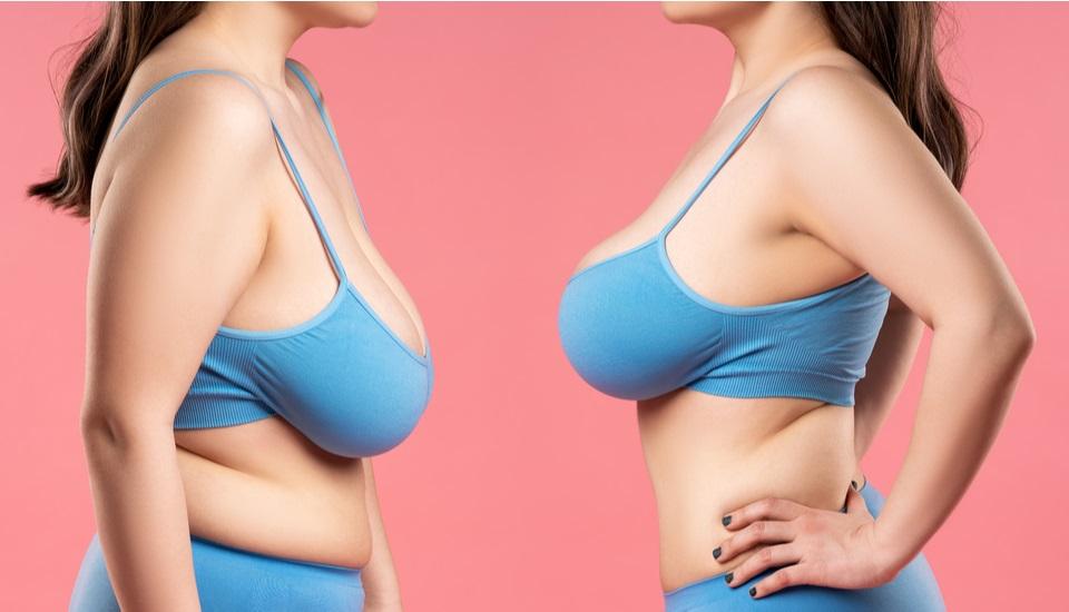 Breast Lift Istanbul Turkey