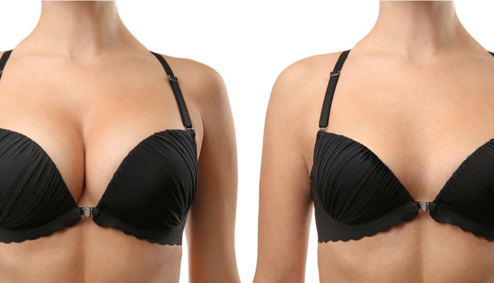 Breast Reduction Istanbul Turkey