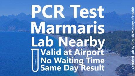 PCR Test Marmaris at Lab - 1