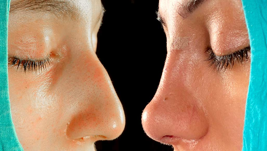 Rhinoplasty-in-Istanbul-before-after-operation